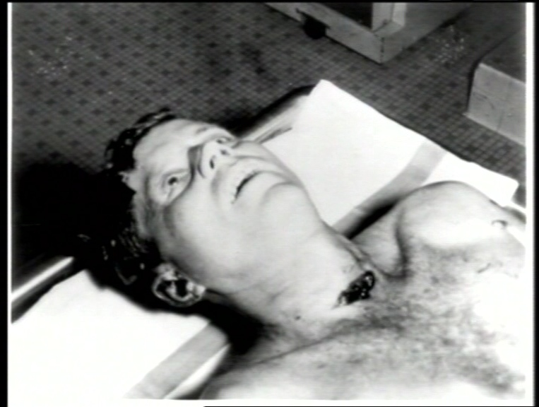 http://laura-knight-jadczyk.com/images/JFK%20neck%20wound.jpeg