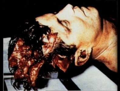 JFK Autopsy Photos