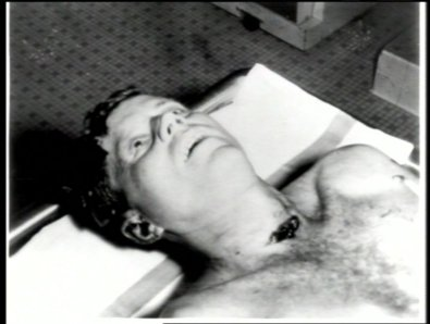 JFK neck wound